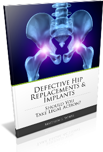 Free Guide to Defective Hip Replacement Lawsuits